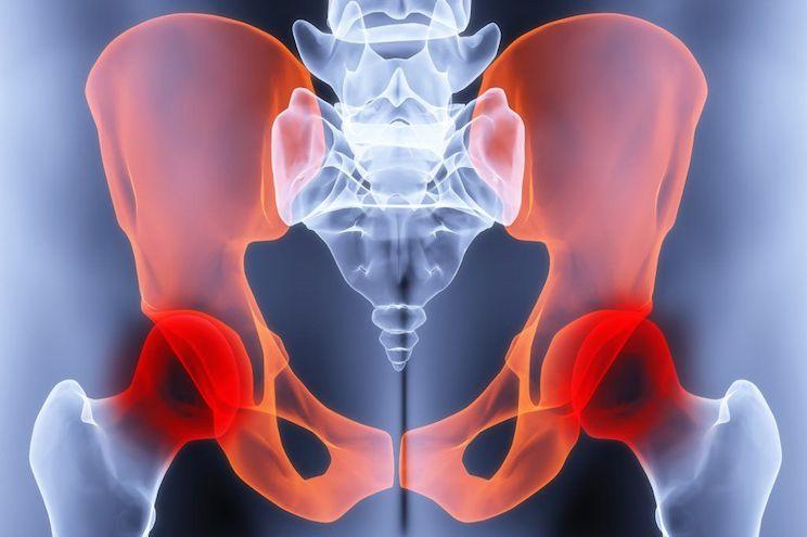 Терапевтическое лечение перелома таза