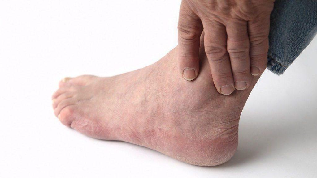 Отёчность и боль в области голеностопа
