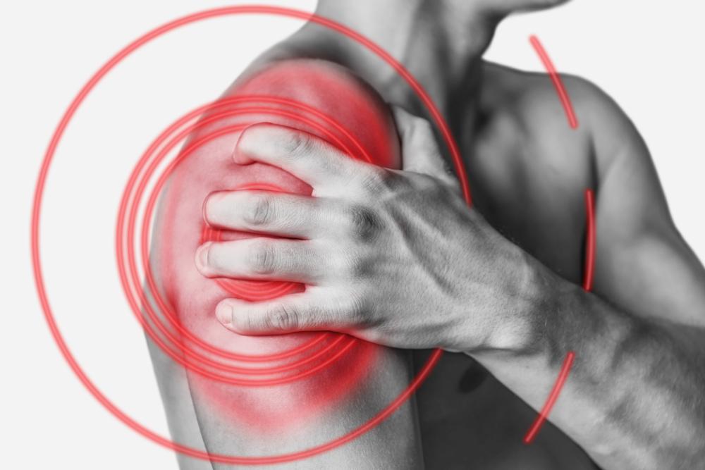 Симптомы плечелопаточного периартроза