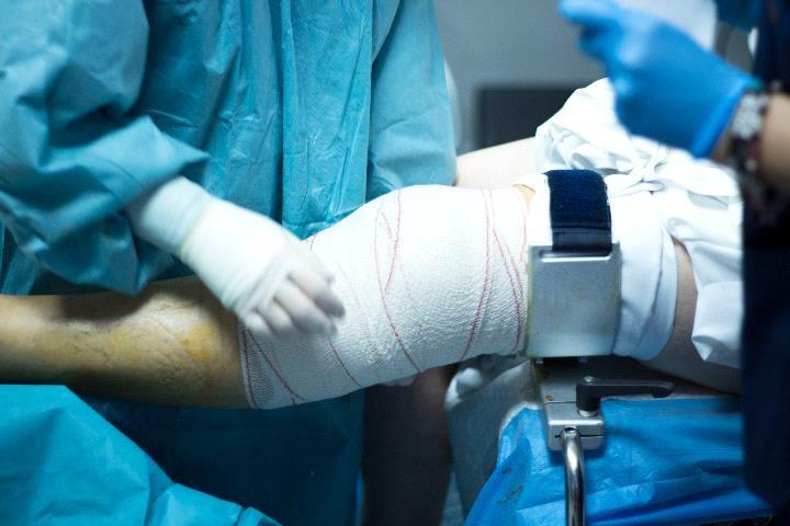 Ноготь большого пальца в дальнейшем, при поражениях 3 и 4 степени, отслаивается в 90% случаев