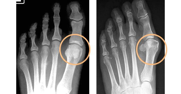Сесамовидная кость