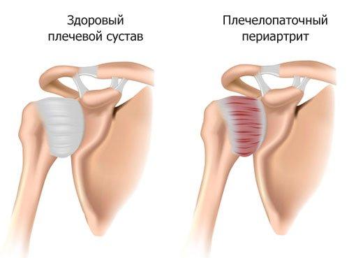 Дегенеративные заболевания скелетного каркаса