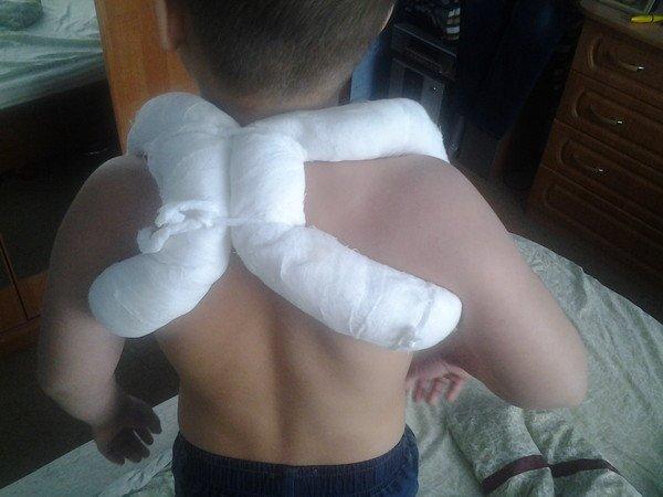 Деформация плеча