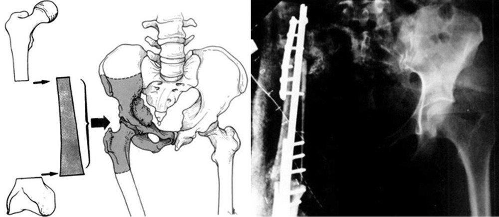 Хирургия при переломе вертлужной впадины