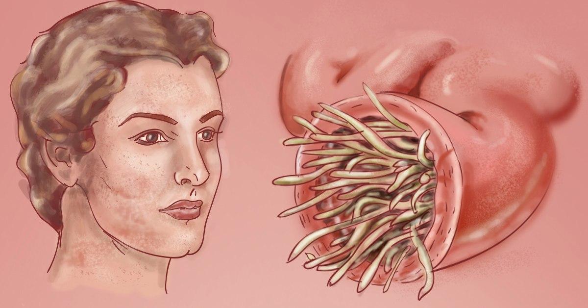 Гельминтозными поражениями организма