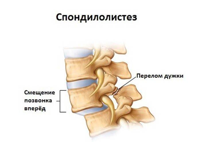 Импортные препараты для лечения остеопороза стоят достаточно дорого