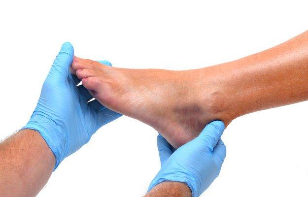 Шишка на ноге после ушиба