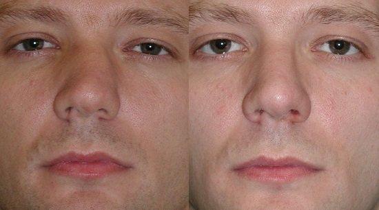 Травма хрящевой перегородки носа