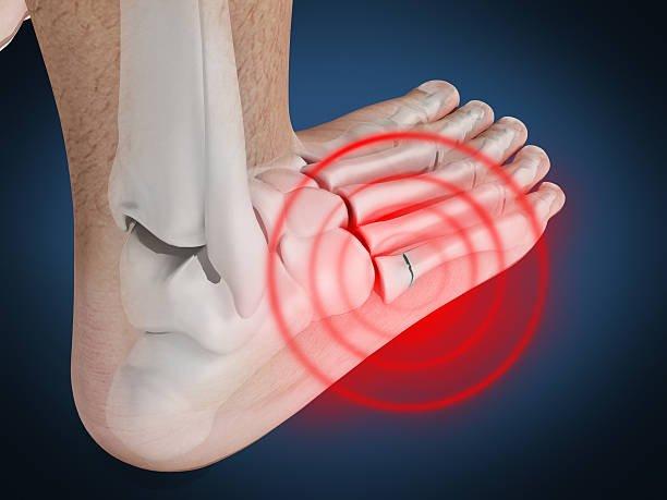 Вероятность трещины в кости пальца