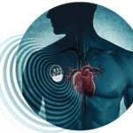 Пациенты, использующие кардиостимуляторы