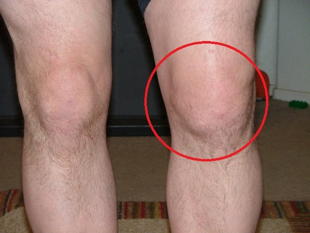 Артропатия колена