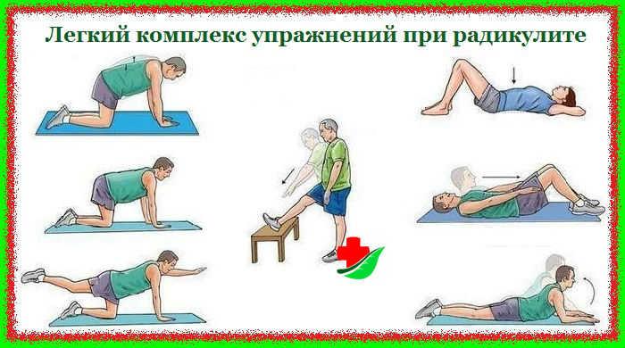Лечебные упражнения при радикулите