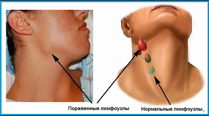 Нарушение работы лимфоузлов