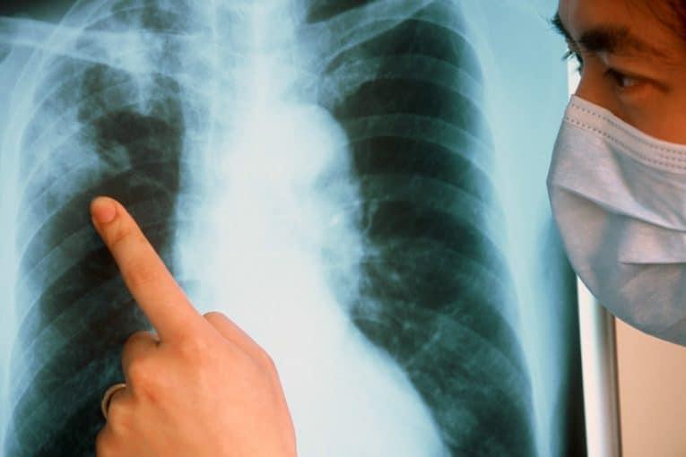 Делает рентген или УЗИ