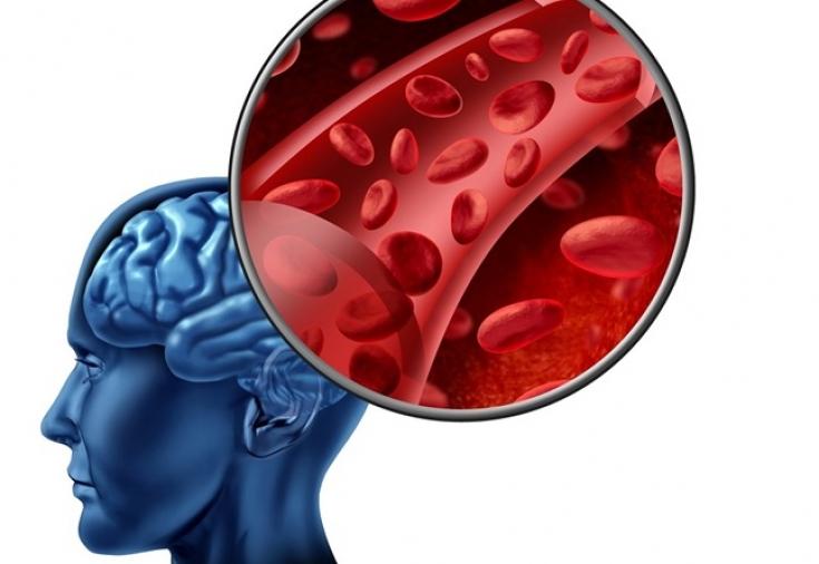 Прогрессирование нарушений мозгового кровообращения