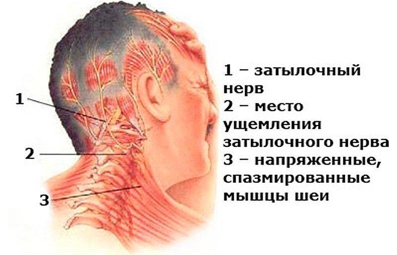 Ущемляются корешки затылочных нервов