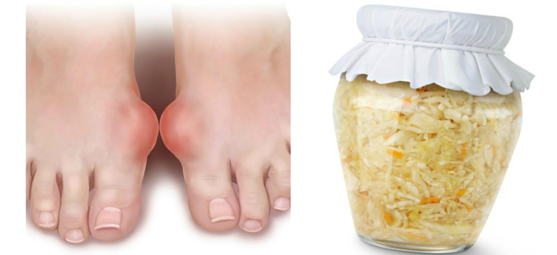 Порошок из бадяги для лечения пальца ноги