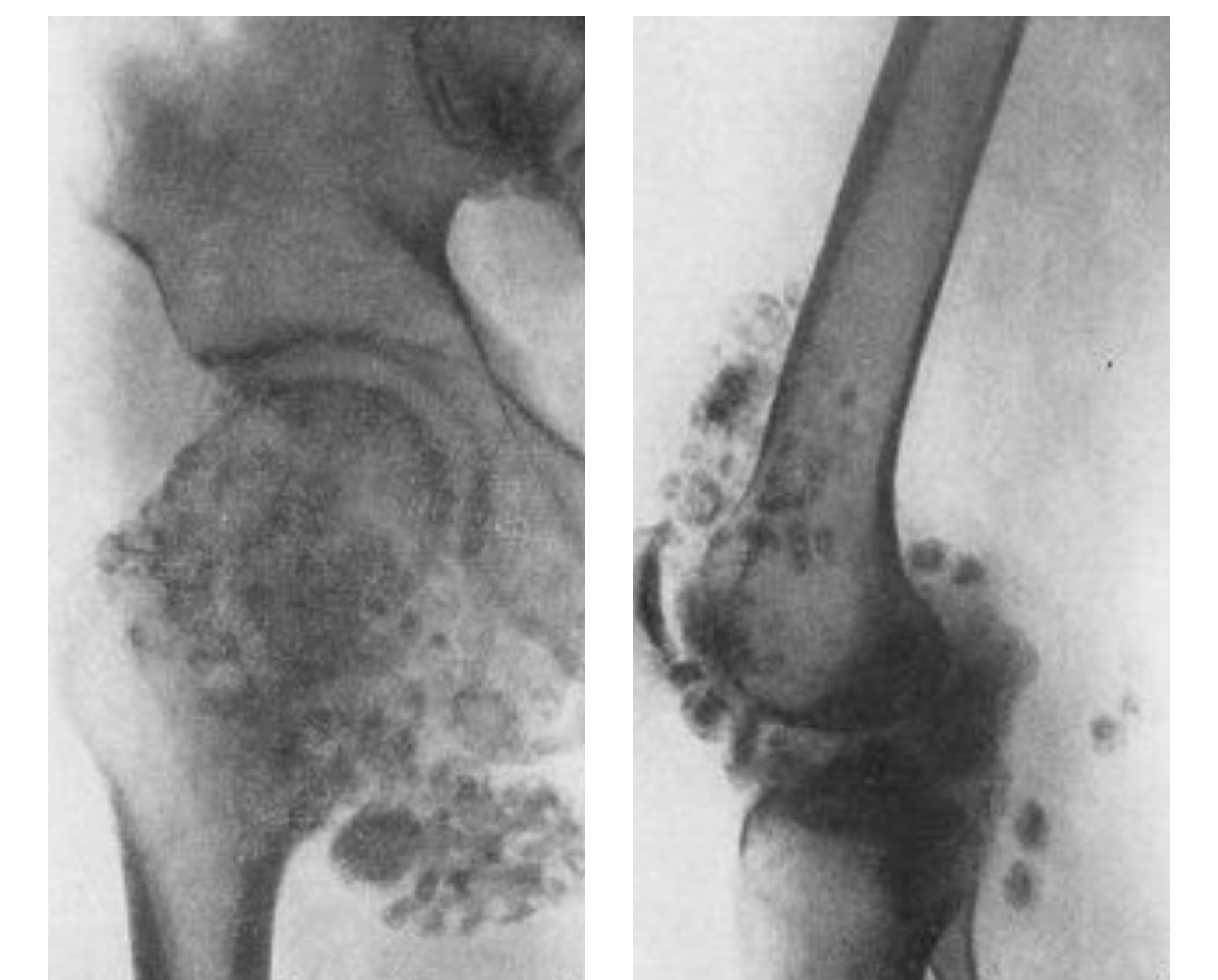 Мумие при переломах костей
