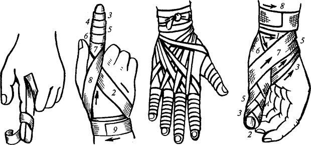 Накладывать на палец спиралевидную повязку