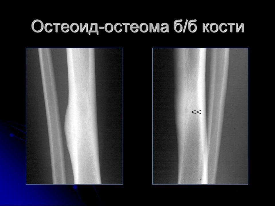 Остеоид-остеома б/б кости