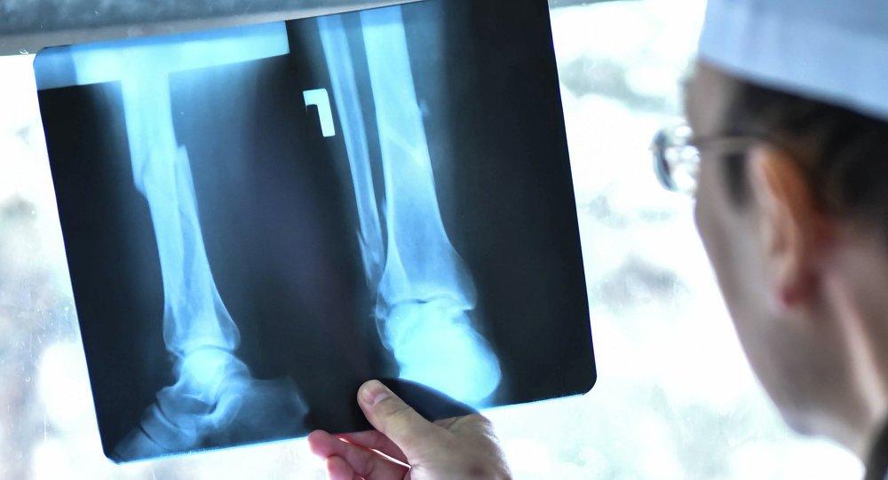 Рентгенологические способы