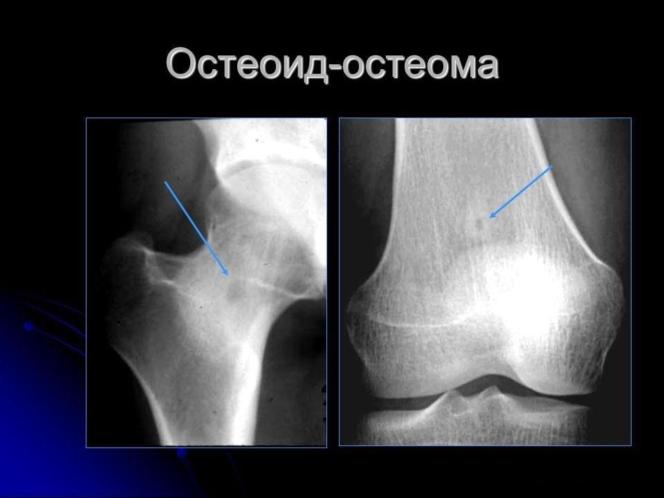 Болезнь Остеоид-остеома