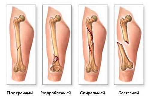 Виды перелома ног