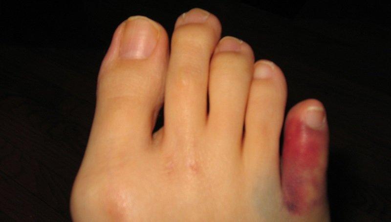 Симптомы перелома мизинца на ноге