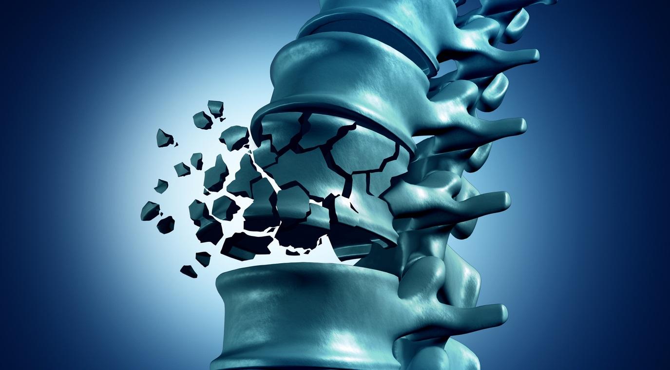 Виды перелома шеи