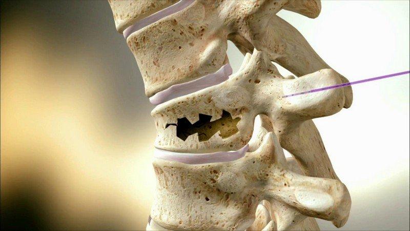 Симптомы при переломе шеи