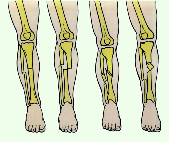 Переломы нижней части ноги