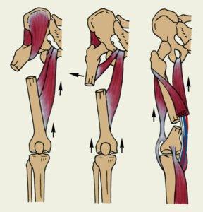 Перелом диафиза бедренной кости