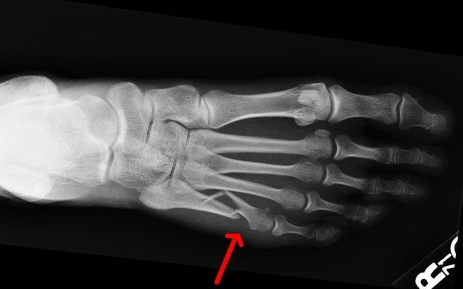 Перелом пятой плюсневой кости