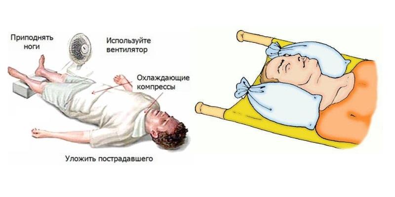Перелом черепа первая помощь