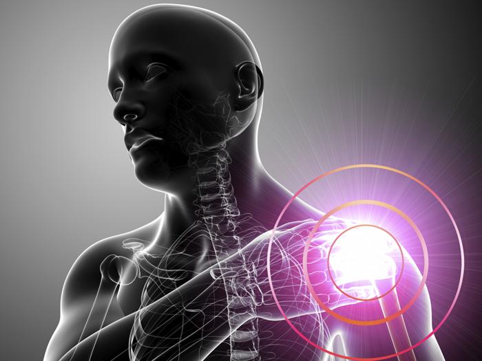Причины плечелопаточного периартроза