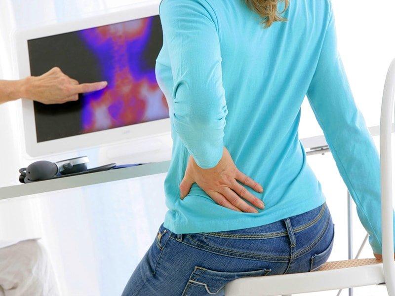 Остеофиты поясничного отдела симптомы