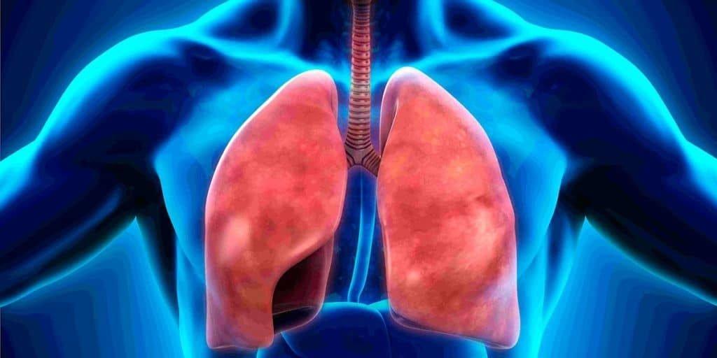 Возникновения пневмонии