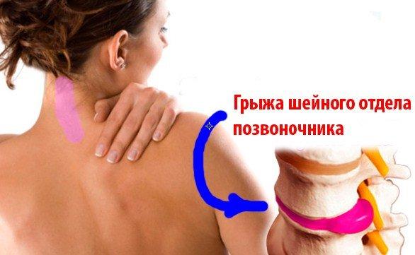 Артроз лучезапястного сустава