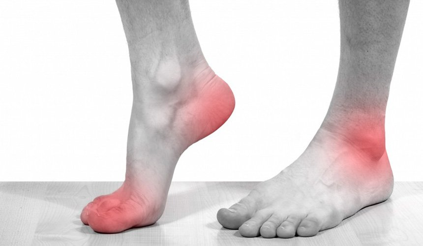Заболевание голеностопного сустава