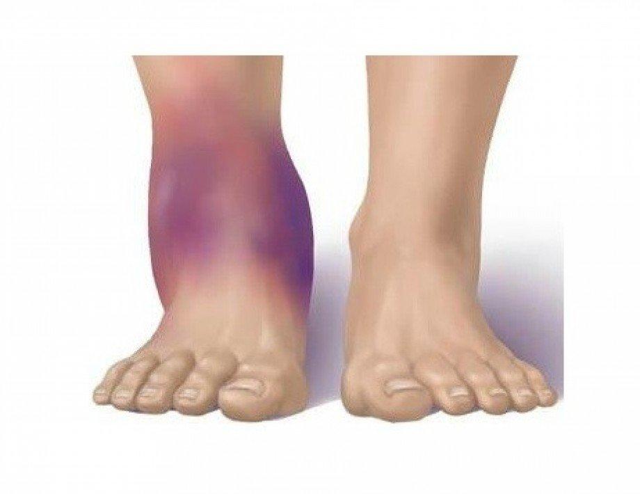 Симптомы синовита голеностопного сустава