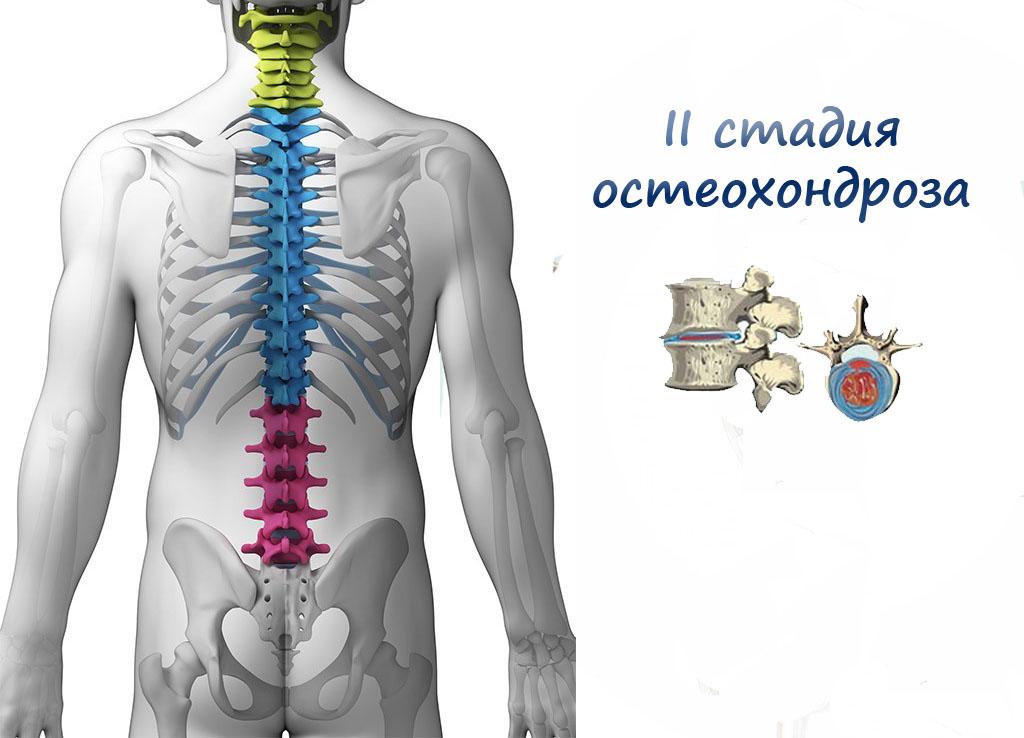 ΙΙ стадия остеохондроза