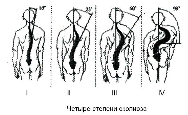Степени сколиоза