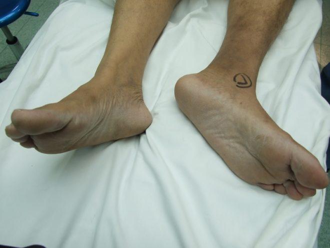 Визуальное укорочение поврежденной конечности