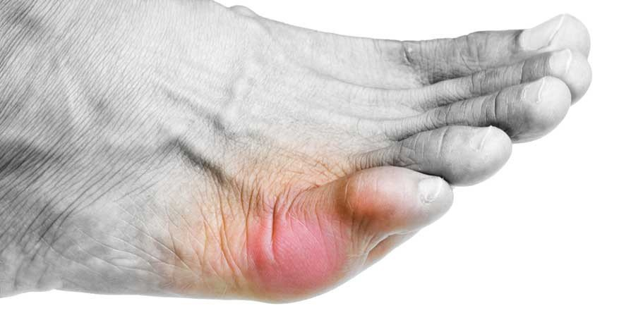 Симптомы ушиба мизинца на ноге