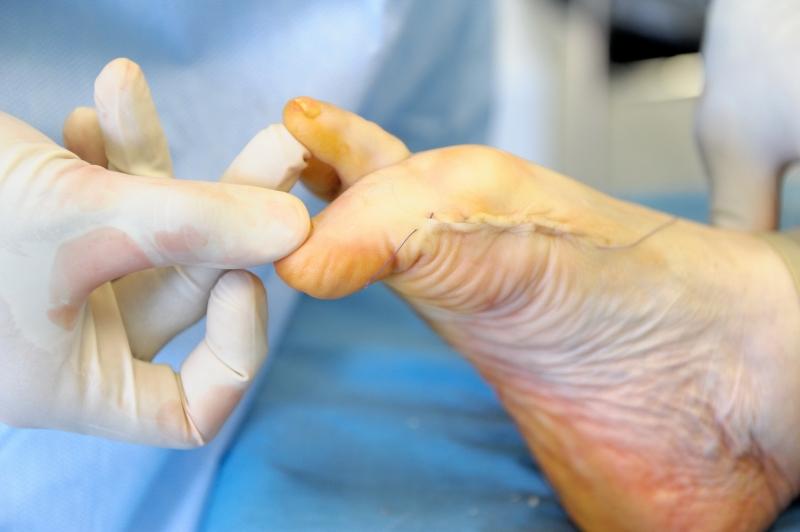 Хирургическое вмешательство перелома пальца ноги