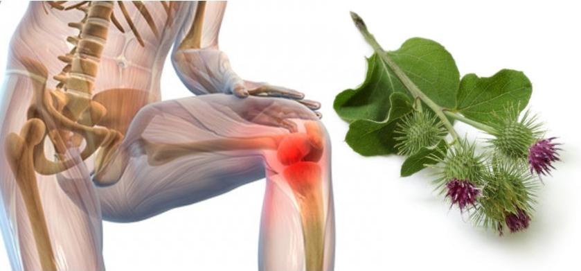 Лопух приартрозе коленного сустава