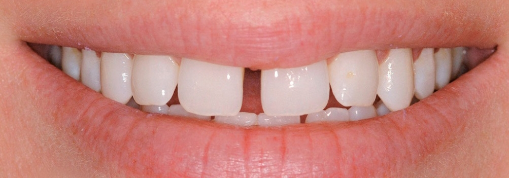 Образование щелей между зубами