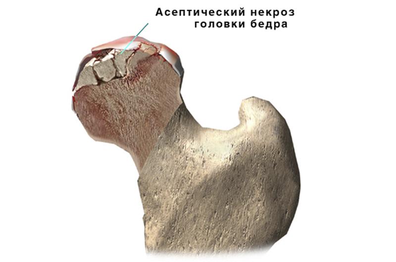 Некроз асептический головки бедра