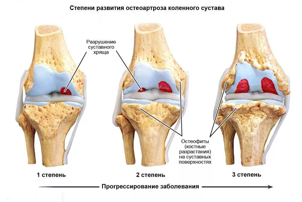 Гонартроз степени коленного сустава