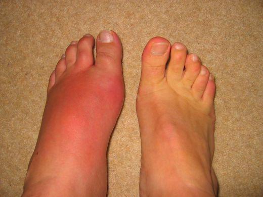 Воспаление сустава на ноге